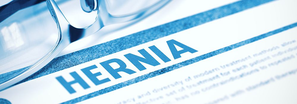 how to avoid a hernia